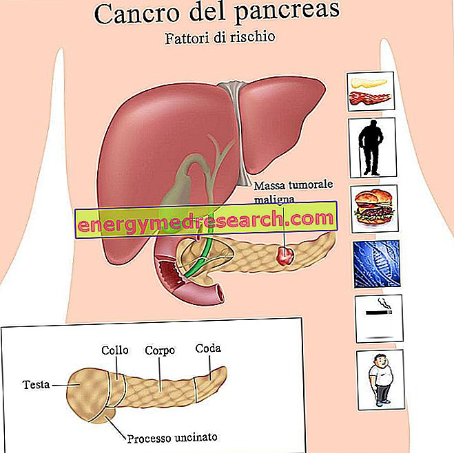 Kateri so dejavniki tveganja za rak trebušne slinavke?