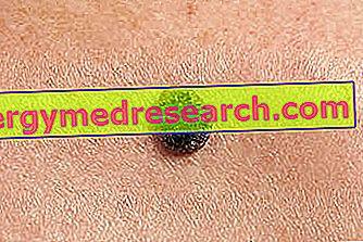 Squamous carcinoma: Mikä se on?  A.Griguolon syyt, oireet, diagnoosi, hoito ja ehkäisy
