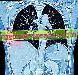 Plućni adenokarcinom