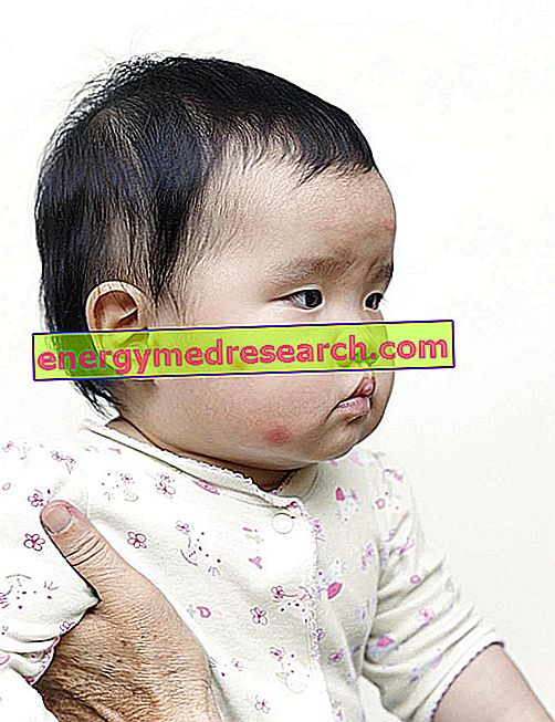 Ali obstaja cepljenje proti japonskemu encefalitisu?